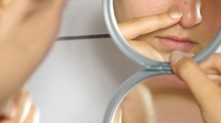 Preguntas frecuentes sobre la psoriasis