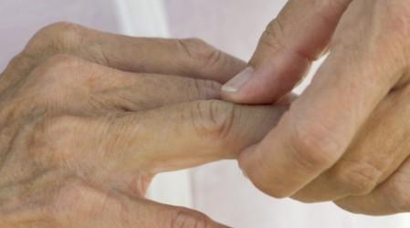 Artritis psoriásica (Causas, Tipos, Síntomas, Tratamientos y Remedios)