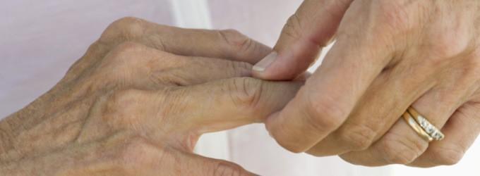 acido urico en sangre tratamiento tratamiento para gota fisioterapia algun remedio natural para la gota