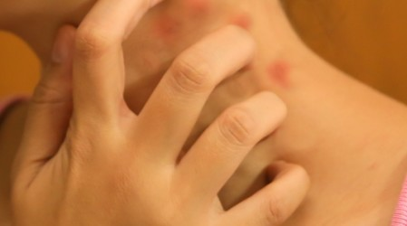 Eczema numular en niños ¿Cómo se trata?