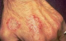 dermatitis-numular
