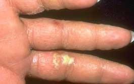 eczema-hidrotico