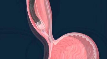 Endoscopia en la enfermedad de Crohn: información general