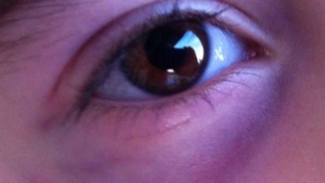 como quitar venas de los ojos
