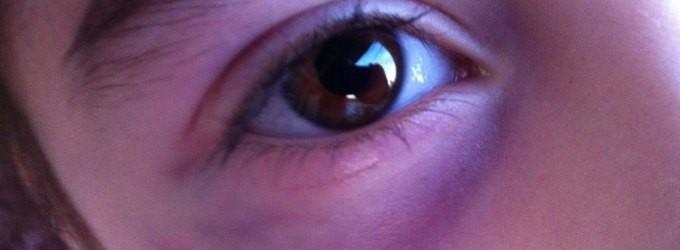 ojo morado