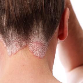psoriasis-cuero-cabelludo