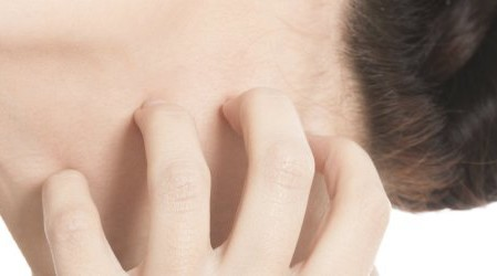 Eczema seborreico y costra láctea