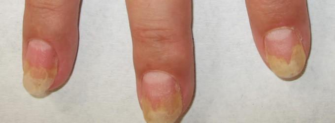 Sofora de atopicheskogo de la dermatitis