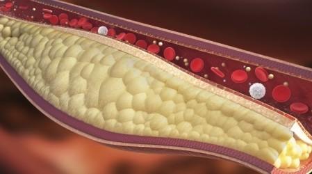 40 remedios caseros para reducir el colesterol alto