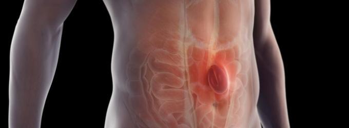 que es una hernia inguinal estrangulada