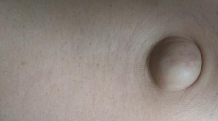 Hernia umbilical (Causas, Síntomas, Tratamientos y Remedios)