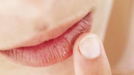 30 Remedios caseros para el herpes labial