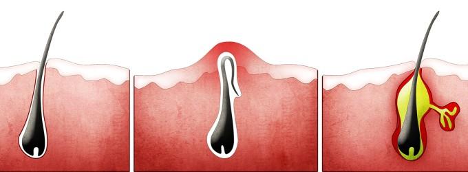 Le depilan la vagina y el culo a rusa - 3 4