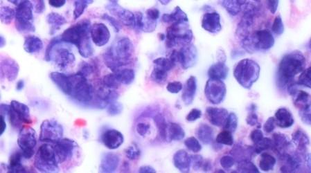 Herpes (herpes simplex)(Causas, síntomas, tratamientos y remedios)