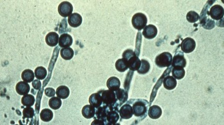 Infección vaginal por hongos o candidiasis(Causas, Síntomas y Tratamientos)