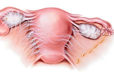 inflamacion-pelvica