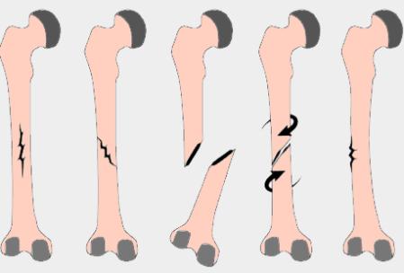 Tipos de Fracturas (Guía Ilustrada)