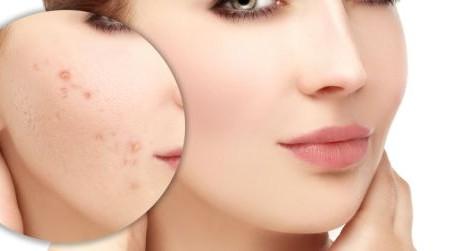 Las mejores hierbas para tratar el acné, así como otros tratamientos naturales para esta condición