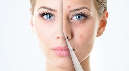41 Remedios caseros para tratar el acné quístico