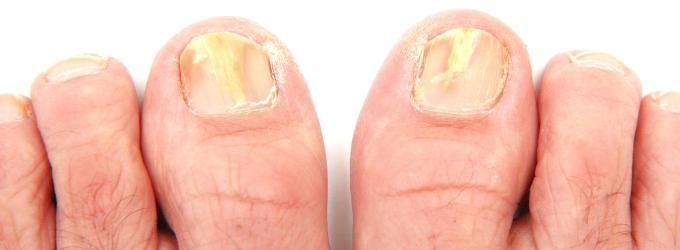 Eliminar el hongo sobre las uñas de los pies