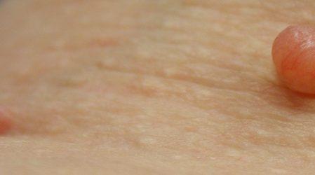 Cómo quitar acrocordones o verrugas de la piel naturalmente