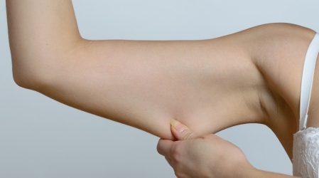 10 consejos para tensar la piel Después de Perder Peso